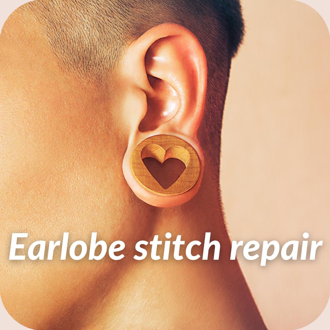 Earlobe Stitch Repair