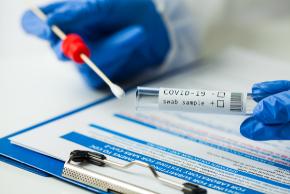 Covid 19 PCR testing
